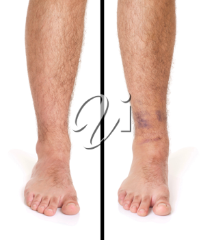Royalty Free Photo of a Sprained Ankle