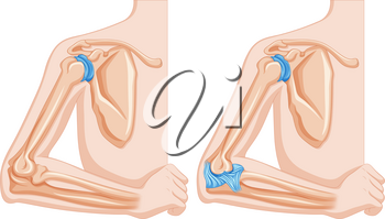 Diagram showing elbow joints illustration