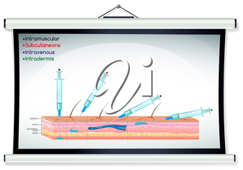 Injection diagram with syringe illustration
