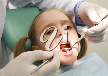 Photo of small girl looking at camera with open mouth while it being examined by dentist