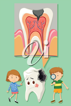 Boy and girl with tooth decay diagram illustration
