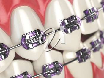 Teeth with braces or brackets in open human mouth. Dental care concept. 3d illustration