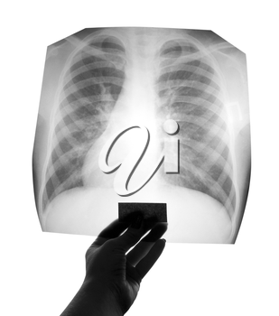 Chest X-ray image in hand