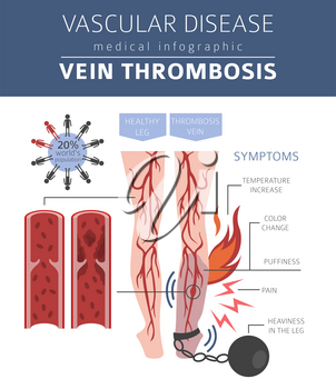 Vascular diseases. Vein thrombosis symptoms, treatment icon set. Medical infographic design. Vector illustration