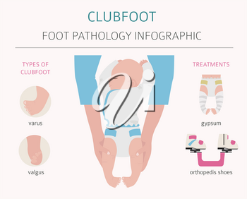 Foot deformation, medical desease infographic. Clubfoot defect. Vector illustration