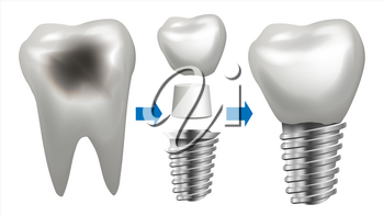 Dental Implant Vector. Tooth With Caries. Health Tooth Implant. Dental Clinic Stomatology Flyer. Isolated Illustration